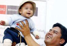 El pequeño Nicolás fue sometido a varias intervenciones quirúrgicas debido a las fuertes quemaduras que afectó sus cuatro extremidades