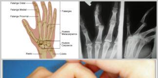 Fractura de un dedo
