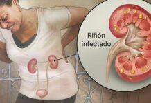 infección renal