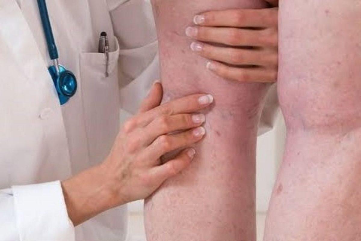 Alrededor del 10% de pacientes covid-19 sufrió trombosis en las piernas